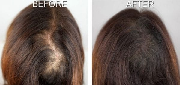 Hair Simulation Services New Image Beauty Bar