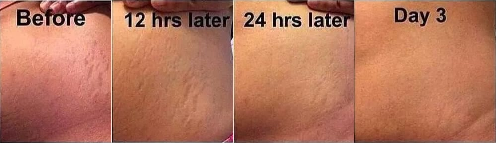 Stretch Marks Removal - NEW IMAGE BEAUTY BAR